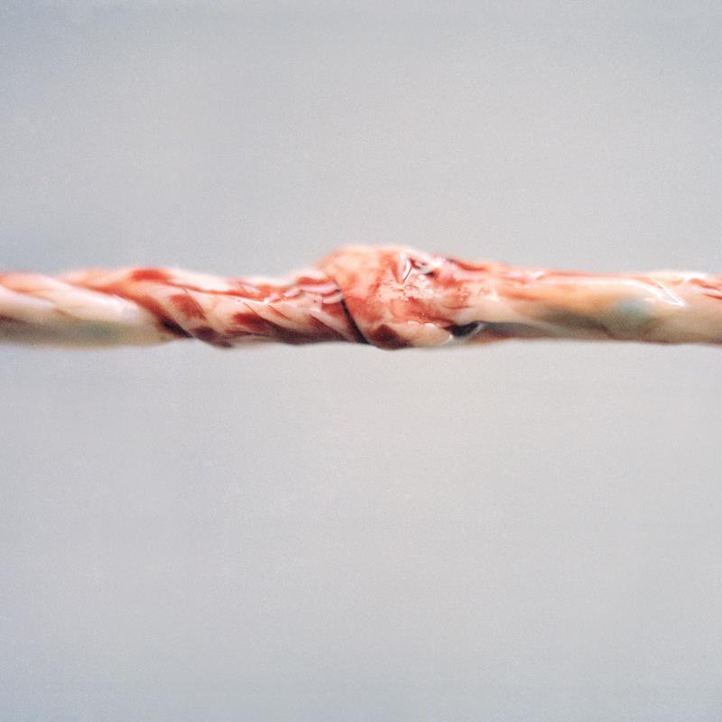 louisebogelundsaugmann - umbilical cord / 80 x 80 cm / archival digital print