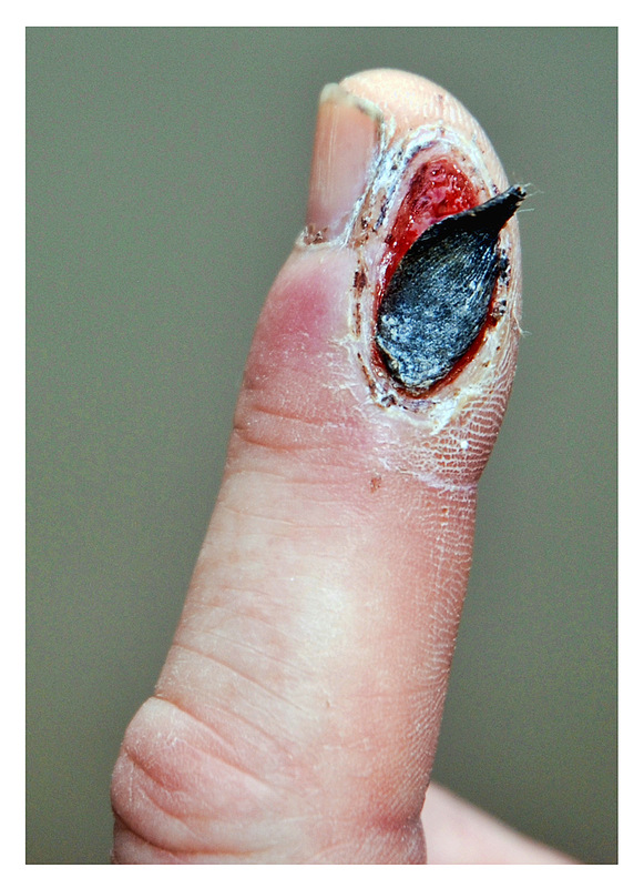 Simon Larson Photography - Medical Image showing sliced finger