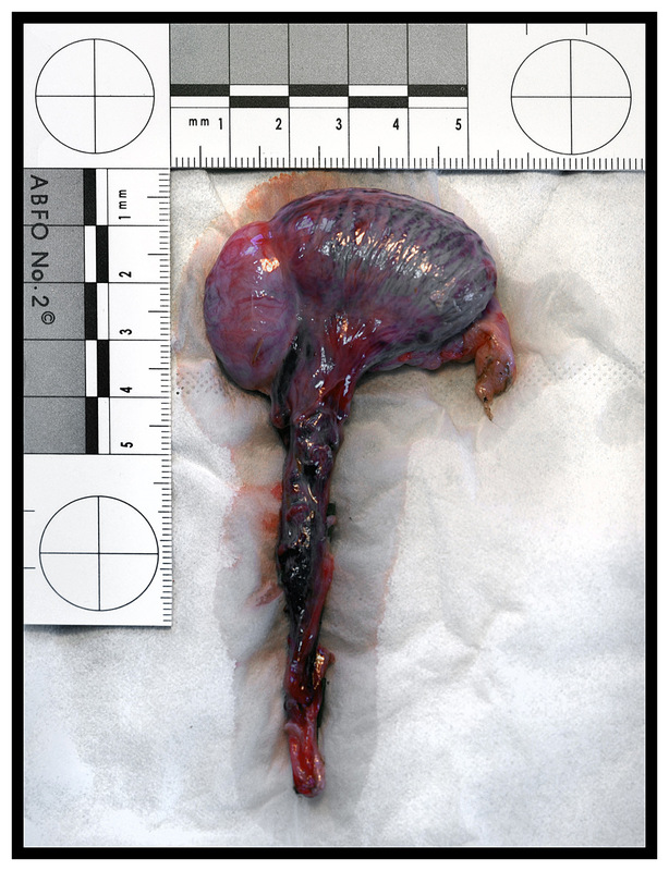 Simon Larson Photography - Medical image of specimen