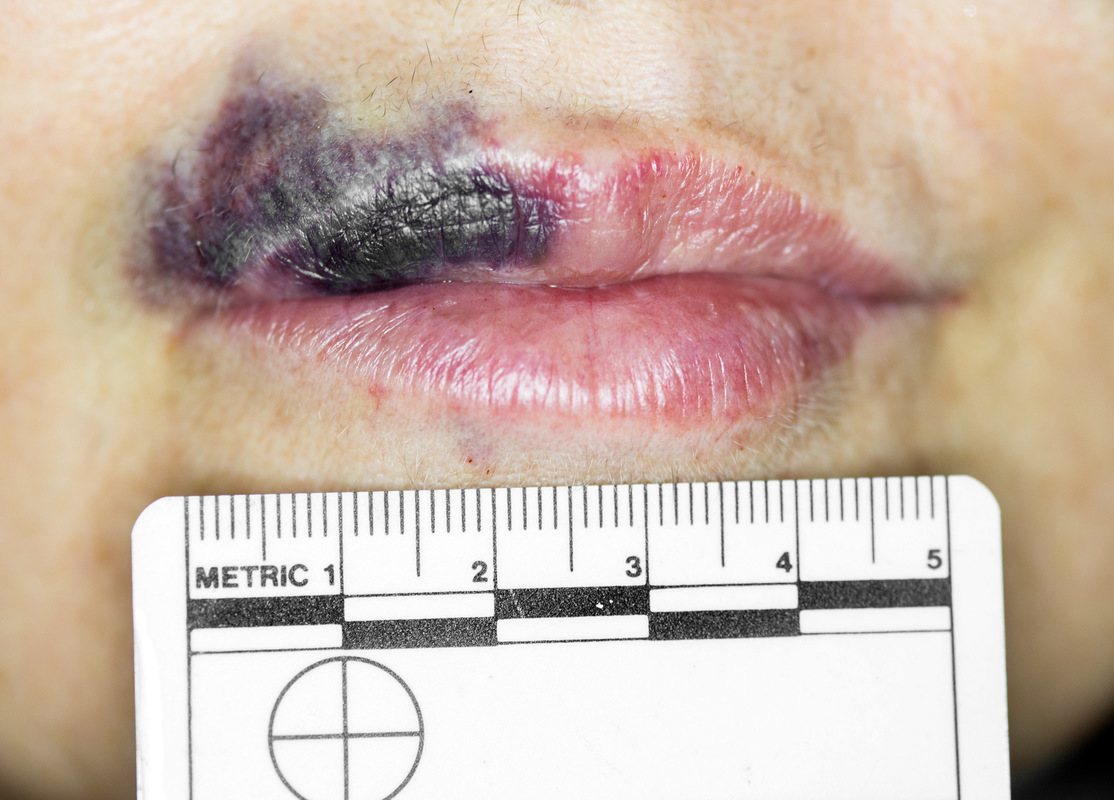 Simon Larson Photography - Medical Image of bruised lip
