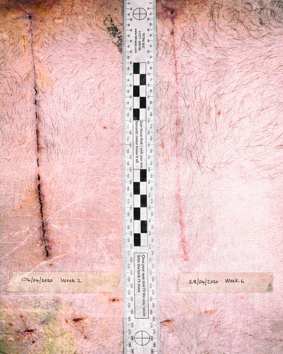 Simon Larson Photography - 04 April 2020 Scar Tissue