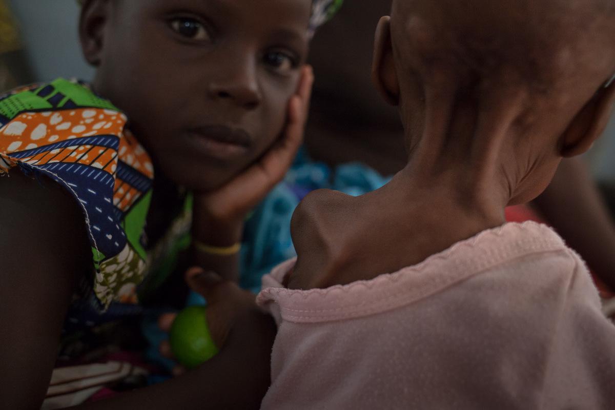 """Adrienne Surprenant - Julehatou Abdouaziz, 9 mois, a un MUAC de 87. Il souffre de malnutrition sévère aiguë et de staphylococcie. Des plaies visibles sur sa tête ont alerté sa famille. La mère de Julehatou est morte alors qu'il avait 4 mois. Privé de lait maternel, il a été soigné tant bien que mal par sa tante, qui habite à Mokolo. 'On ne savait pas qu'il était mal-nourri. C'est seulement en arrivant à l'hôpital qu'on m'a expliqué qu'il fallait lui donner de la bouillie enrichie. Maintenant, je vais aussi le faire avec mes 9 enfants,"""" explique tante Roukayatou."""