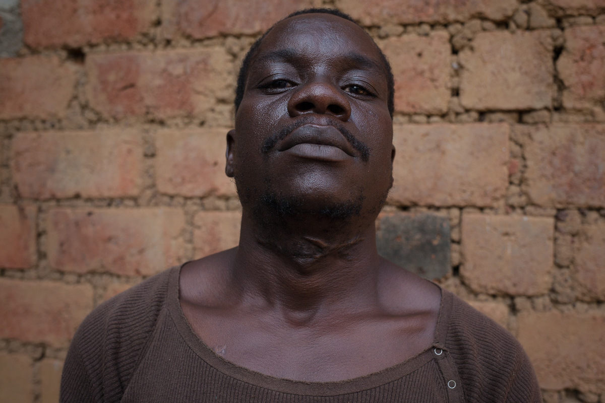 Adrienne Surprenant - Richard Aime Anga, 32, was at the butchery on the morning of May 9 when shooting started, and he left for his neighbourhood of Bangui Ville. On the way, he says he was attacked by Muslim fighters who cut his throat and yelled that he was a member of the anti-balaka, a Christian armed group. He survived and fled to the bush, where he stumbled upon Portuguese peacekeepers who brought him to the Red Cross.