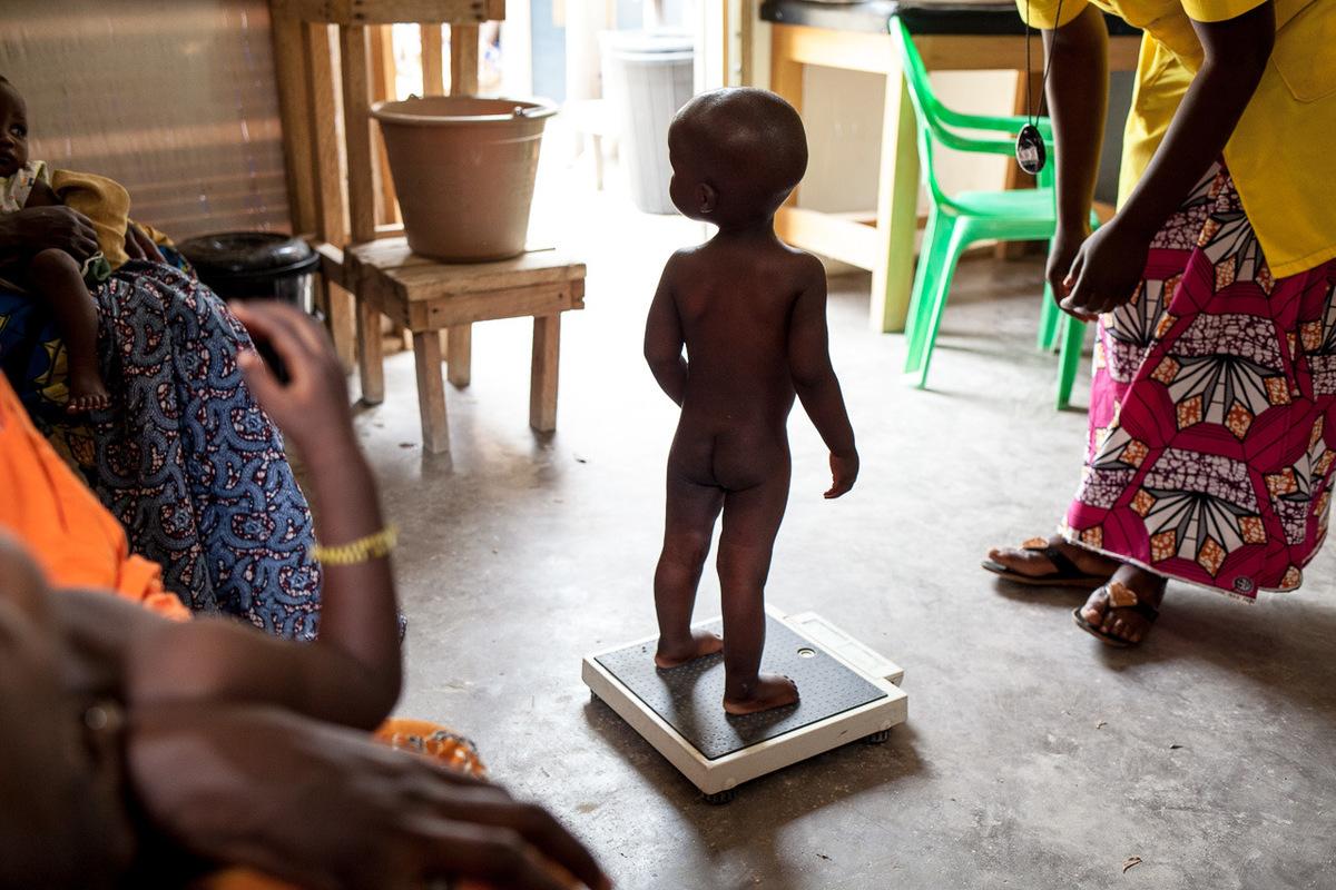 Adrienne Surprenant - Deli, 3 ans, souffre de Kwashiokor, malnutrition doublée doedèmes qui tue près de la moitié des enfants affectés. Symptômes les plus visibles, ses pieds et ses joues enflent depuis deux semaines. Lidia Koji, sa mère, l'a emmené en moto du village de Rhoumzou jusqu'à l'hôpital de Mokolo, où il a été admis en pédiatrie. Elle ne pouvait pas payer les soins dans un autre établissement de santé camerounais.
