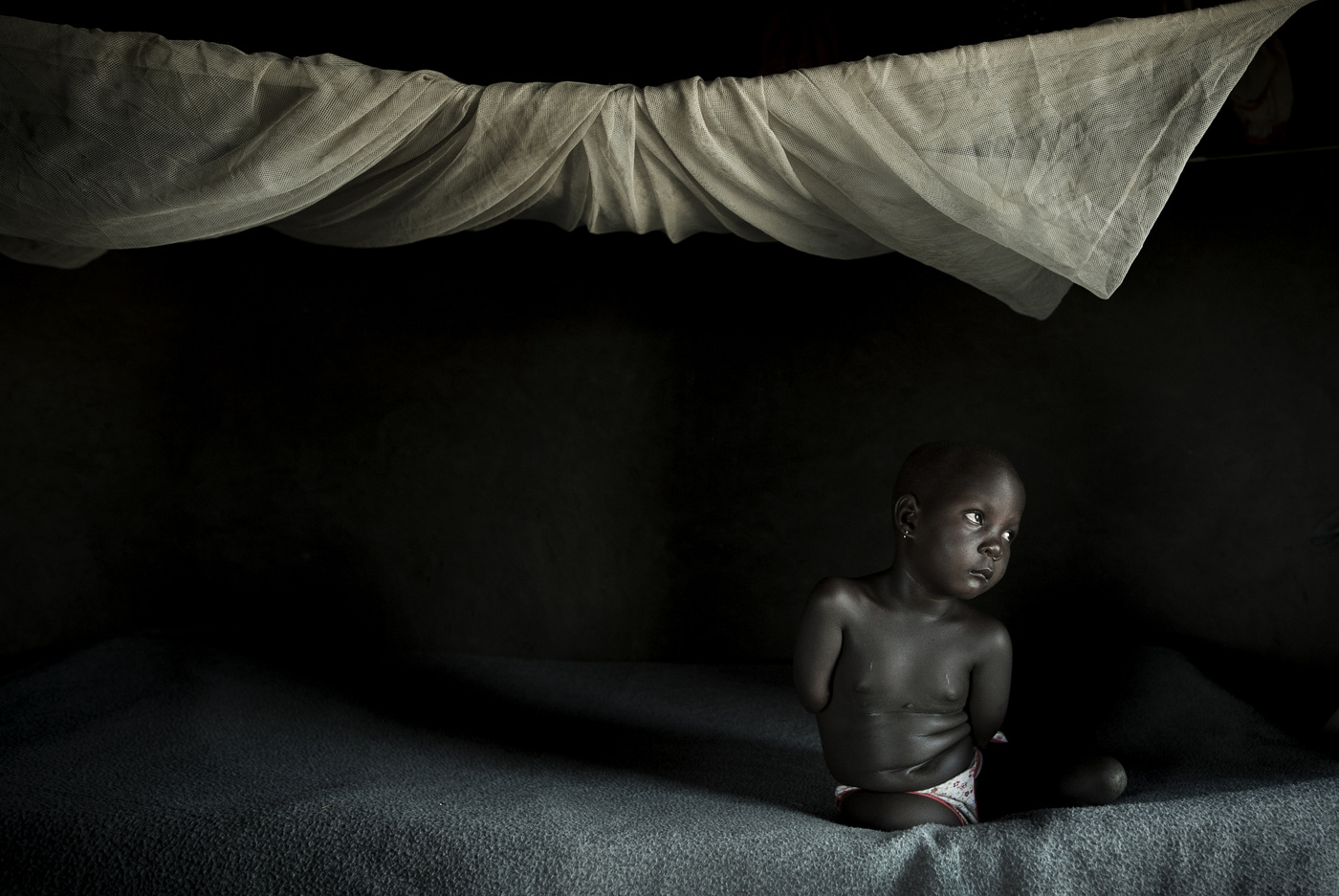 John T. Pedersen Photography - Gifti Kope is (7), and born without limbs. Why am I not like other children, she asks her mother.