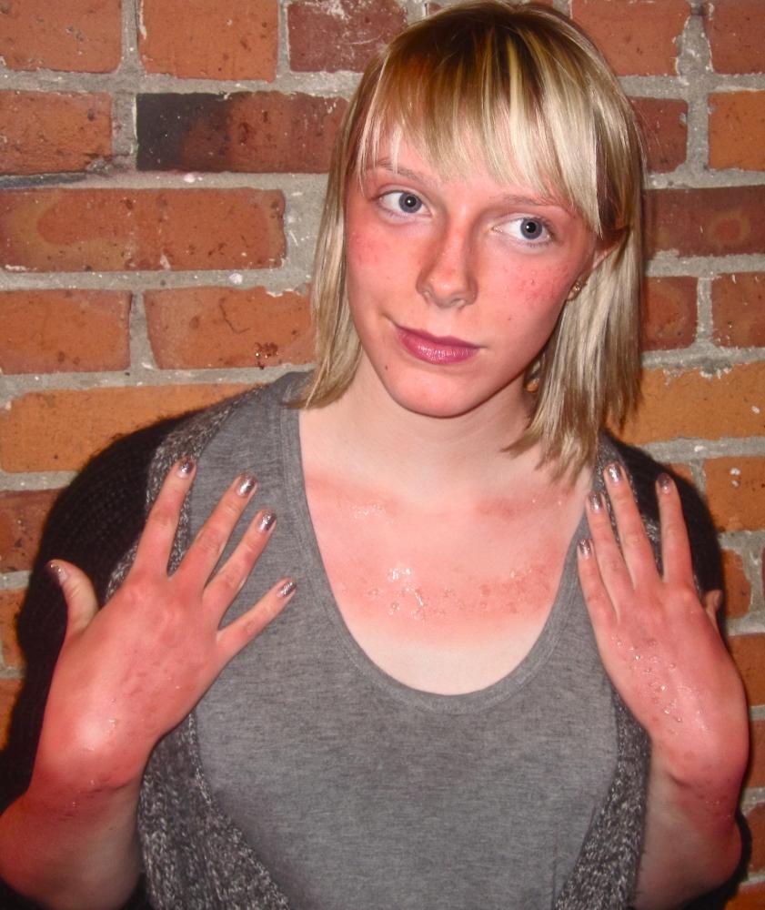 Make Up by ASM - Bad Sunburn