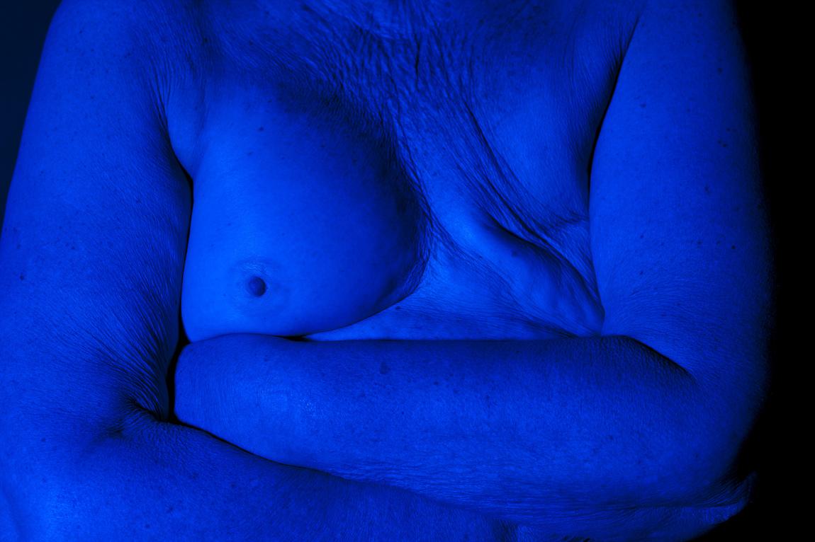 Anna Nordström - Överlevare, ett fotoprojekt om bröstcancer